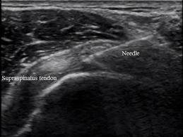 ultrasound guided pain management courses