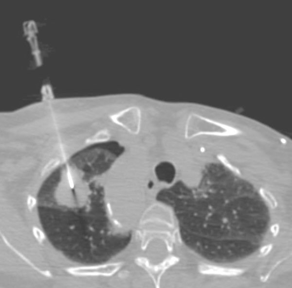 ct guided lung biopsy technique